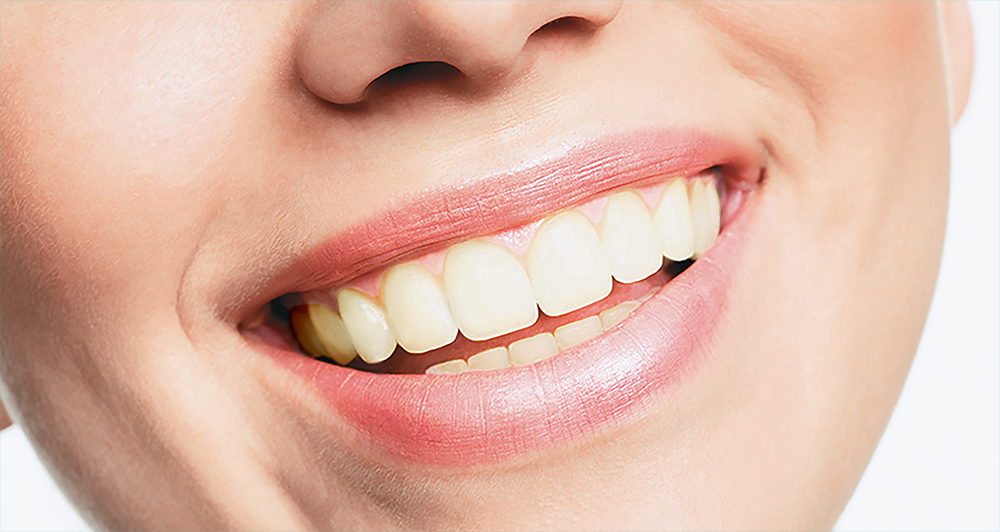 Gordon Street Dental Gallery - Teeth-Whitening-V1