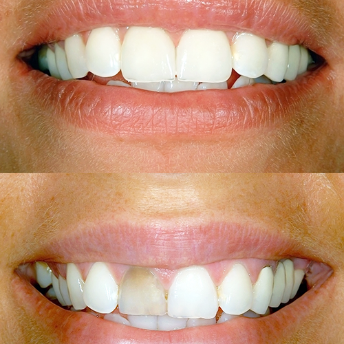 Porcelain Veneers Gordon Street Dental