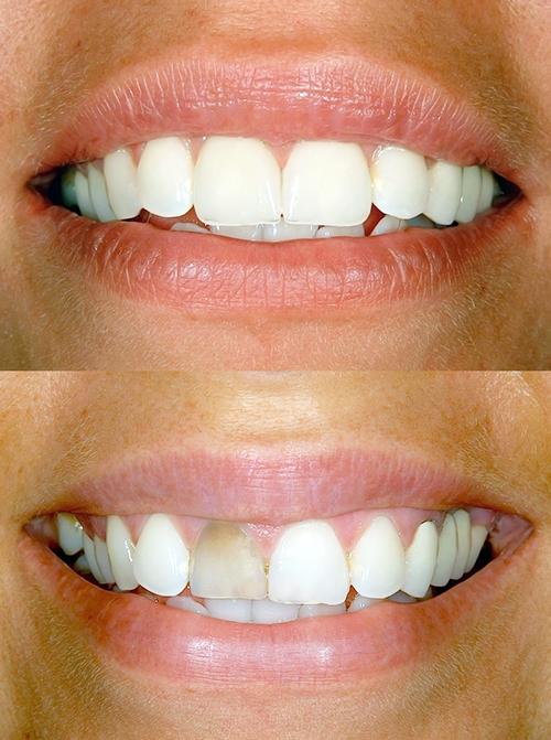 Porcelain Veneers Gordon Street Dental