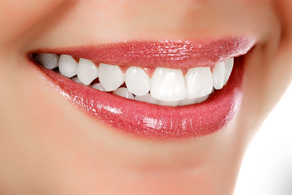 Teeth Whitening Gordon Street Dental